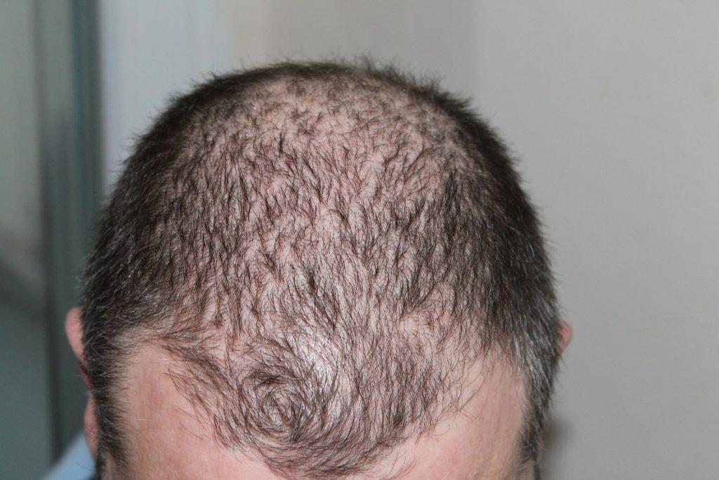 causa da queda de cabelo